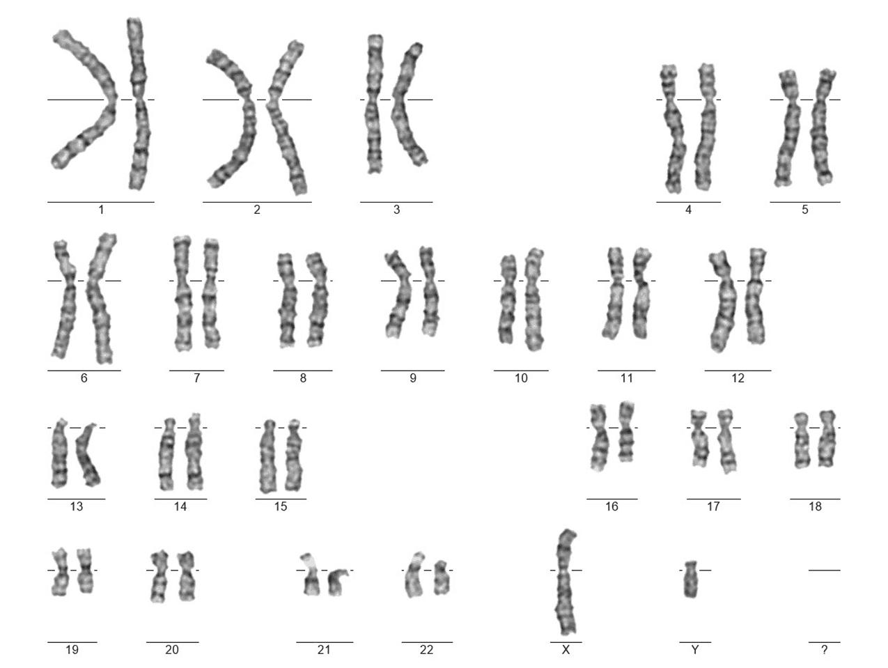karyotyp muže