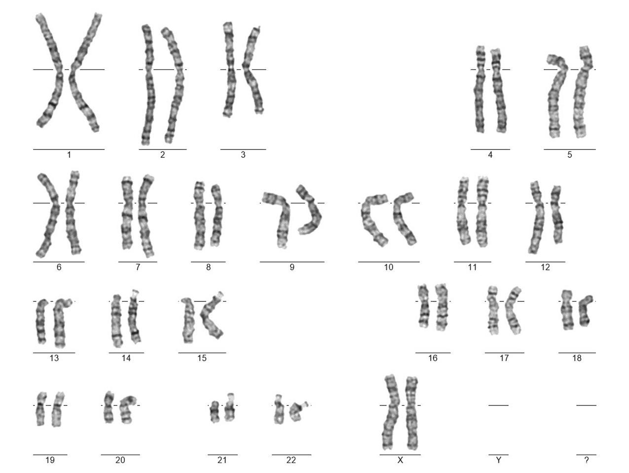 karyotyp ženy