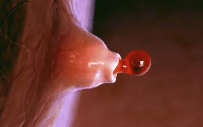 Jak antikoncepce ovlivňuje ovulaci
